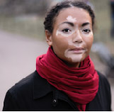 vitiligo treatment